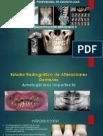 5.-Estudio-Radiográfico-Amelogenesis-Imperfecta..pptx