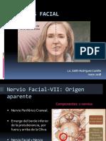Parálisis Facial