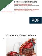 Síndrome de Condensación Inflamatoria - Copia