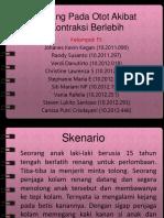 Pleno F5