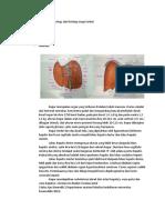 Anatomi Faal Histo Dari Hepar