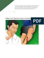 Un Hueso Roto o Fractura Es Una Lesión Que Requiere de Atención Médica Inmediata