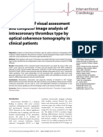Comparison of Visual Assessment and Computer Image Analysis of Intercoronary Thrombus Type by Optical Coherence Tomograp