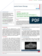 Primary Spindle Cell Rhabdomyosarcoma of Prostate