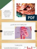 tabique inter y ventricular