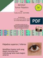 Referat Tumor Palpebra