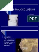 Class II Malocclusion (2)