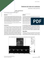 Dialnet-SindromeDelRoboDeLaSubclavia-4099494.pdf