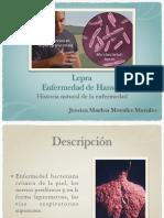 Historia Natural de La Enfermedad LEPRA