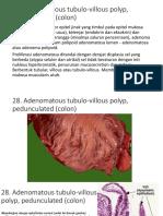 Patohistologi 28-30 fix.pptx