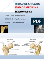 Frac cadera1.pptx