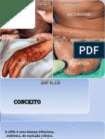 Sifilis VDRL