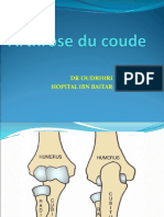 arthrose coude SI TM.ppt