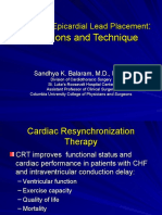 Cardiac Resynchronization  Therapy , Robotic LV Epicardial Lead Placement