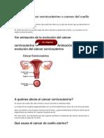 Qué Es El Cáncer Cervicouterino o Cancer Del Cuello Del Útero