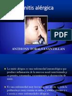 rinitisalergica.pptx