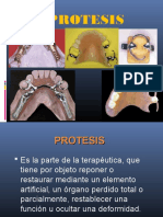 diseodeprotesisparcialremovible-130602093458-phpapp02