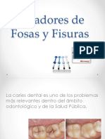 Selladores de Fosas y Fisuras Preventiva 2