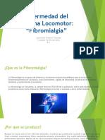 Presentación fibromialgia