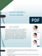 Microcefalia y Anencefalia