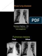 Diffuse-lung-disease.pdf