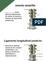 Ligamento costovertebral
