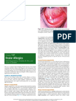 Occular Allergies - Nelson.pdf