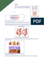 ulcerative_colitis.pdf
