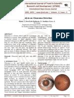 Analysis on Glaucoma Detection