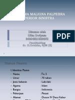 PPT SC - Melanoma Maligna