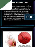 Infarto Agudo de Miocárdio (MN)