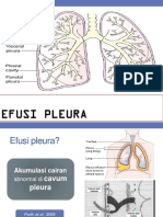 EFUSI PLEURA ( Morning Report 17 September '