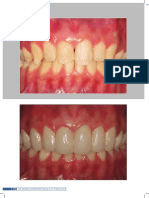 International Journal of Brazilian Dentistry