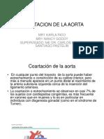 Coartacion de La Aorta (1)