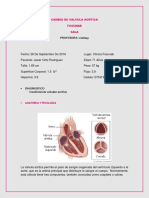 Cambio de Valvula Aortica 2