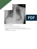 Hipersensitivitas Pneumonitis