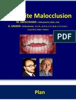 Open Bite Malocclusion
