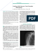 Glenoid Bone Grafting With Reverse Total Shoulder Arthroplasty