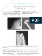 Hemiarthroplasty for Proximal Humerus Fractures