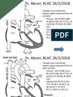 Mulin Right Heart Catheterization