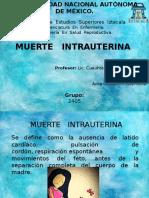 Muerte Intrauterina