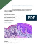Metastasis Carcinoma Anaplasia