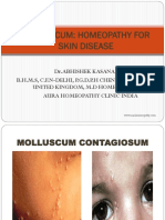 Molluscum Homeopathy Treatment for Skin Disease
