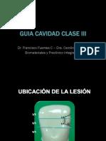 Guia Cavidad Clase III.pdf