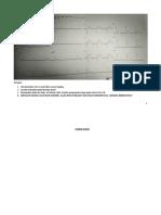 PR EKG.docx