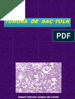 TUMORA de SAC YOLK - Imagini Histo.doc