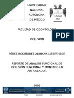 Pérez Rodríguez Adriana Lizbrethzoe. Análisis Oclusal Hc. 2006