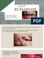 Odontopediatria - Coronas Acero-cromo (Expo)