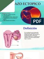Embarazo Ectopico Slg