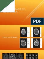 Cara Membaca Ct-scan Kepala